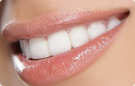Hollywood Smile indications